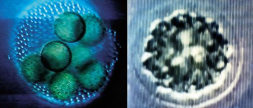 images of round micro-organisms